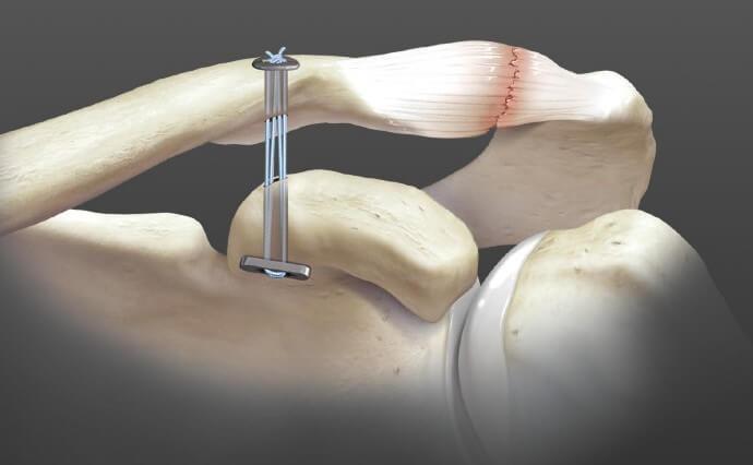 Chirurgie épaule